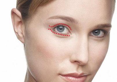 blefaroplastia sin cirugia con plasma laser