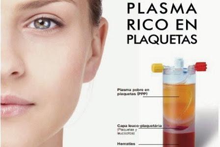 biorevitalizacion plasma rico en plaquetas
