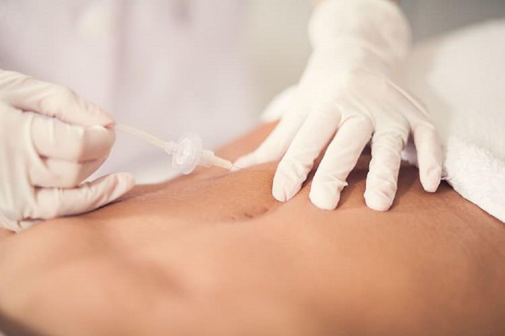 carboxiterapia corporal reafirmante y anticelulitis