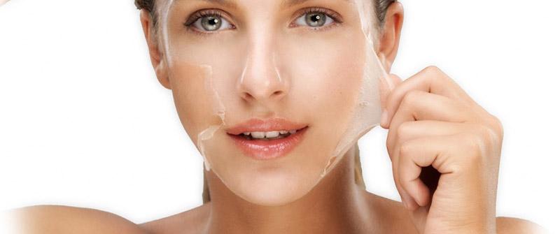 peeling quimico facial