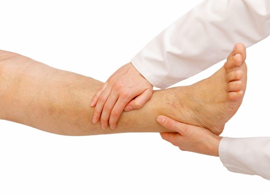mesoterapia para mejorar la retencion de liquido de las piernas