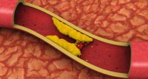 analitica perfil lipidico